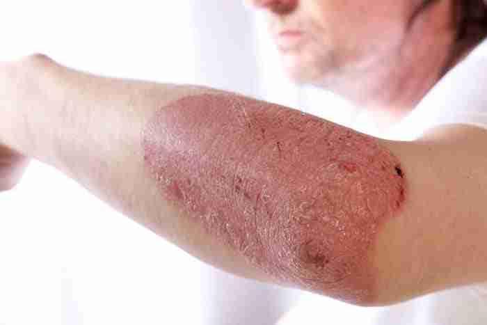 Man with Psoriasis & Eczema