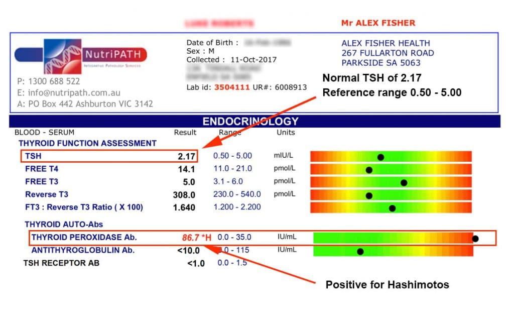 Adelaide Hashimoto Normal TSH Range