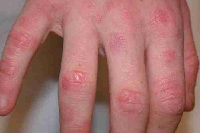 Adelaide-GRANULOMA-ANNULARE-Treatment