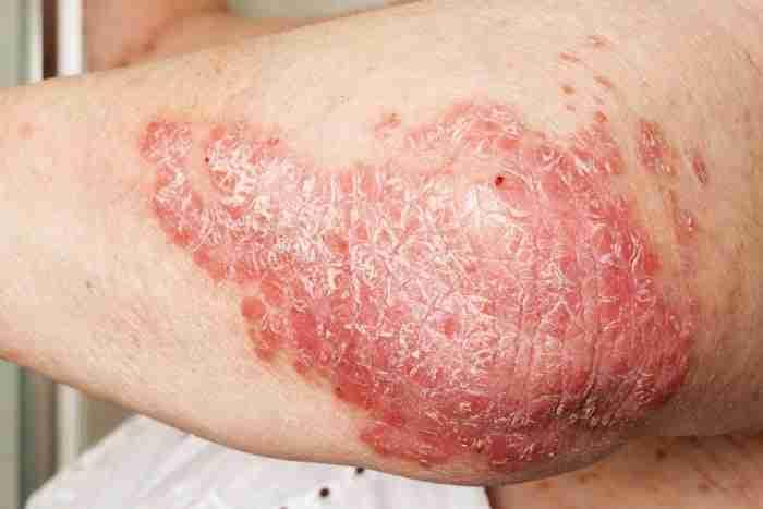 Adelaide-Psoriasis-Treatment