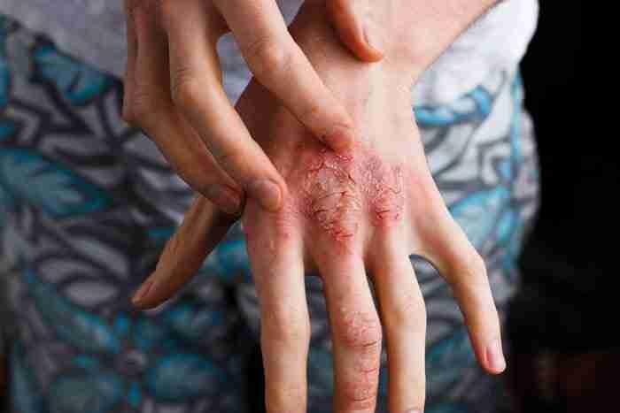 Dermatitis-Autoimmune